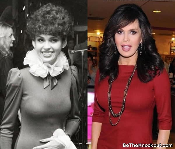 Marie Osmond boob job before and after comparison photo