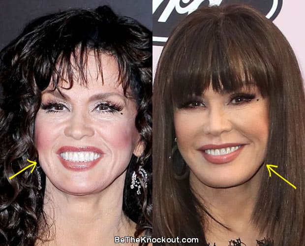 Marie Osmond botox before and after comparison photo