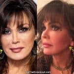 Marie Osmond facelift before and after comparison photo
