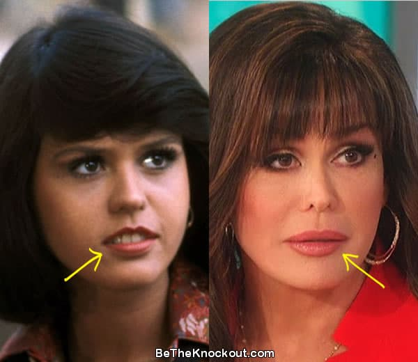 Marie Osmond lip fillers before and after comparison photo