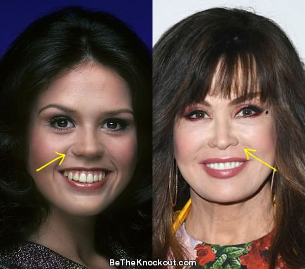 Marie Osmond nose job before and after comparison photo