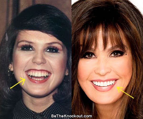 Marie Osmond teeth before and after comparison photo