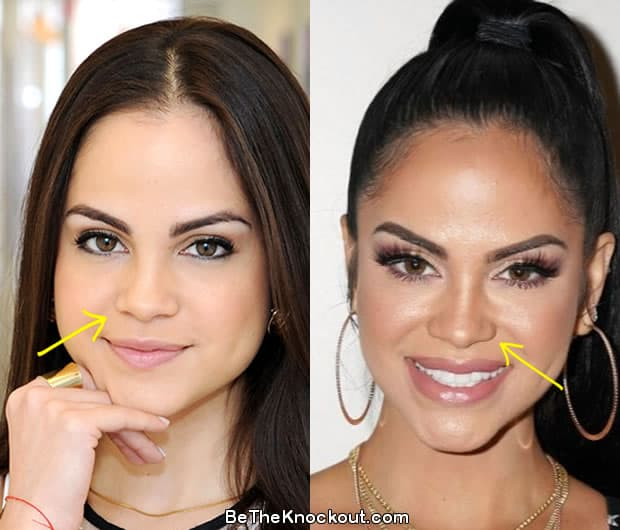 Natti Natasha nose job before and after comparison photo