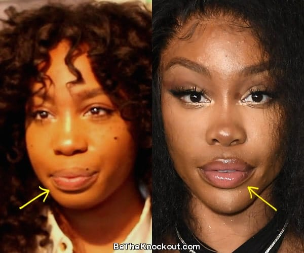 SZA lip fillers before and after comparison photo