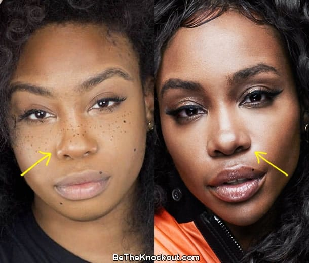 SZA nose job before and after comparison photo