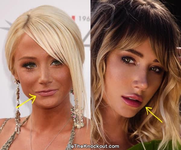 Did Sara Jean Underwood get lip injections?