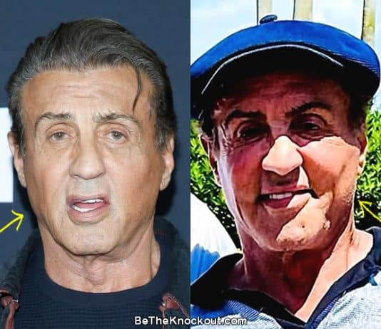 Did Sylvester Stallone have botox?