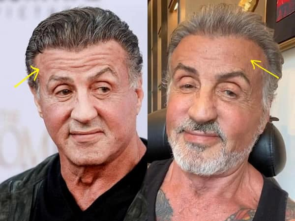 Did Sylvester Stallone have brow lift?