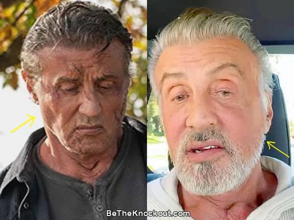 Has Sylvester Stallone had a facelift?