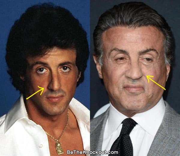 Did Sylvester Stallone have a nose job?