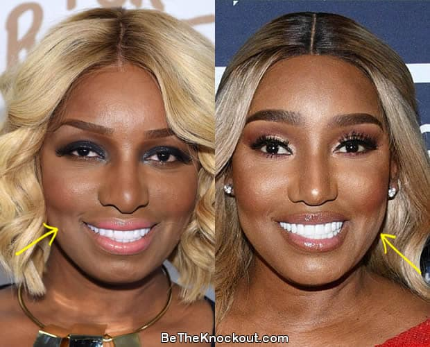 Nene Leakes botox before and after comparison photo