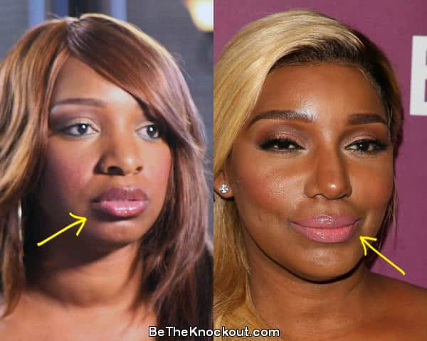 Nene Leakes lip fillers before and after comparison photo