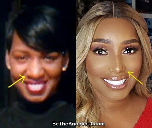 Nene Leakes nose job before and after comparison photo