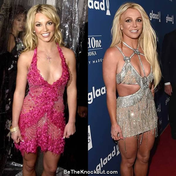 Britney Spears boob job before and after photo comparison