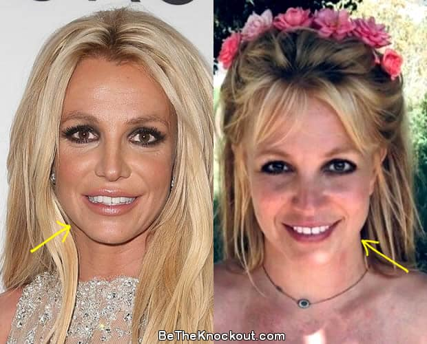 Britney Spears botox before and after photo comparison