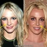 Britney Spears nose job before and after photo comparison