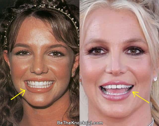 Britney Spears teeth before and after photo comparison
