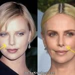 Charlize Theron nose job before and after photo comparison comparison photo