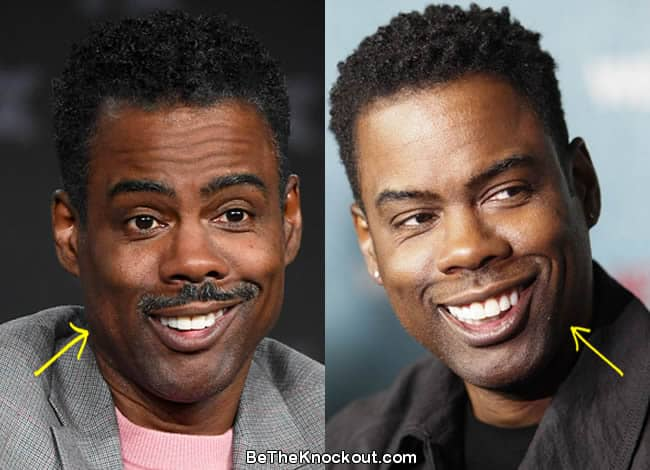 Chris Rock botox before and after comparison photo