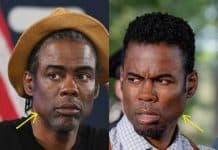 Chris Rock facelift before and after comparison photo