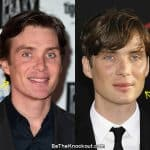 Cillian Murphy botox before and after photo comparison