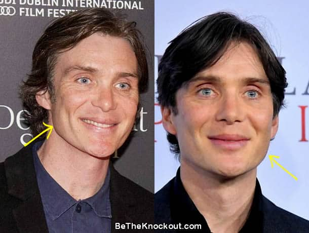 Cillian Murphy face lift before and after photo comparison