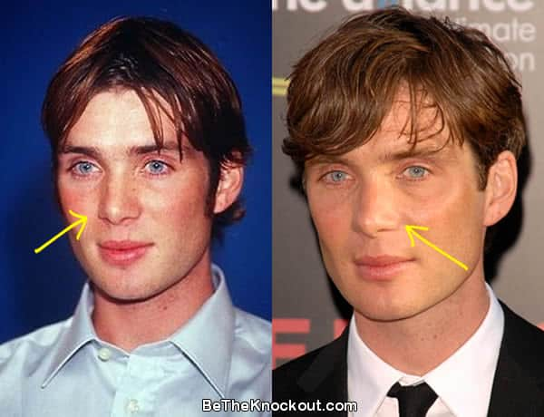 Cillian Murphy nose job before and after photo comparison