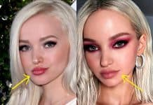 Dove Cameron lip fillers before and after photo comparison