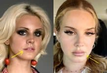 Lana Del Rey lip injections before and after photo comparison