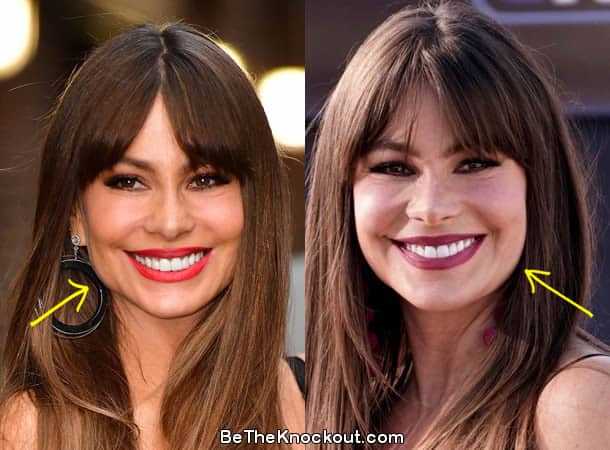 Sofia Vergara botox before and after photo comparison