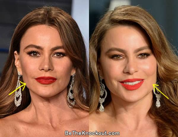 Sofia Vergara facelift before and after photo comparison