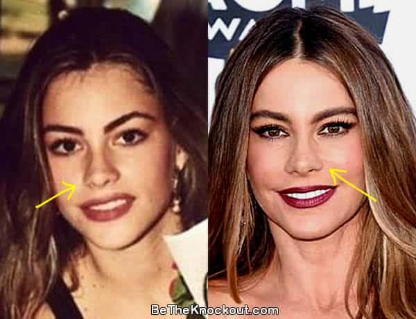 Sofia Vergara nose job before and after photo comparison