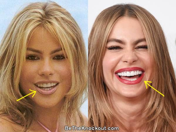 Sofia Vergara teeth before and after photo comparison