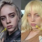 Billie Eilish lip injections before and after comparison photo
