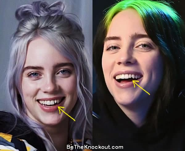 Billie Eilish teeth before and after comparison photo