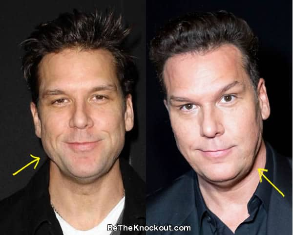 Dane Cook botox before and after comparison photo