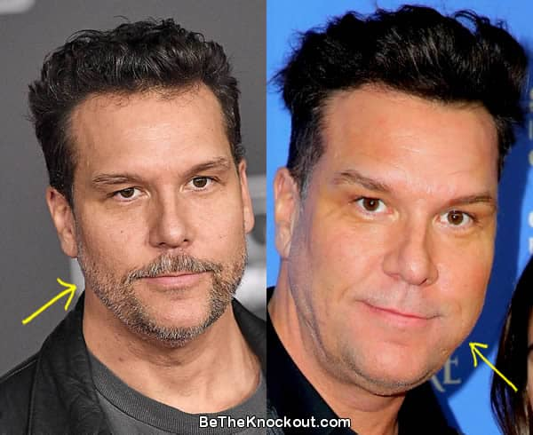 Dane Cook facelift before and after comparison photo