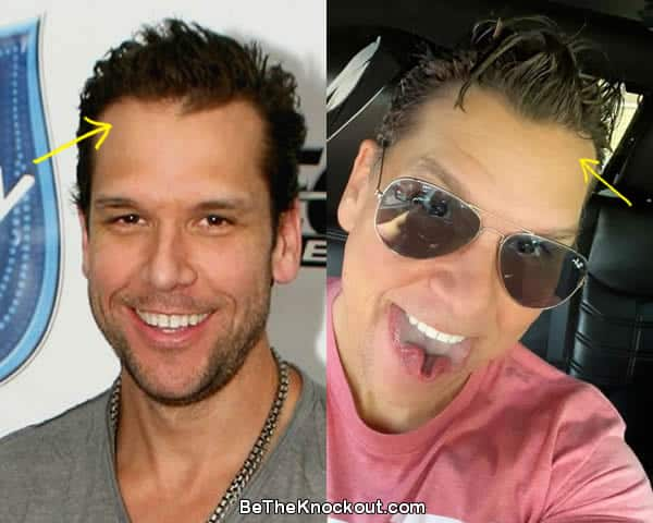Dane Cook hair transplant before and after comparison photo
