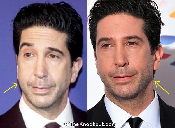 David Schwimmer facelift before and after comparison photo