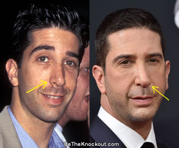 David Schwimmer nose job before and after comparison photo