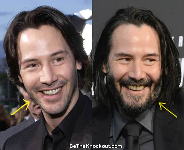 Keanu Reeves botox before and after comparison photo