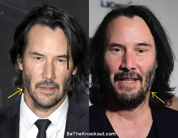 Keanu Reeves facelift before and after comparison photo