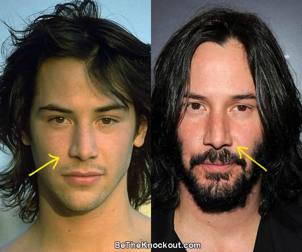Keanu Reeves nose job before and after comparison photo