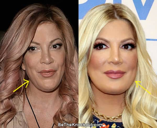 Tori Spelling facelift before and after comparison photo