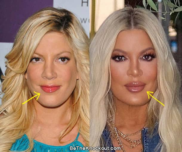 Tori Spelling lip fillers before and after comparison photo