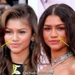 Zendaya nose job before and after comparison photo