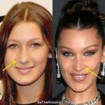Bella Hadid nose job before and after comparison photos