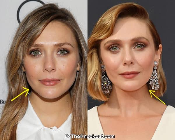 Elizabeth Olsen botox before and after comparison photo