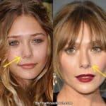 Elizabeth Olsen nose job before and after comparison photo