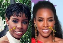 Kelly Rowland nose job before and after comparison photo